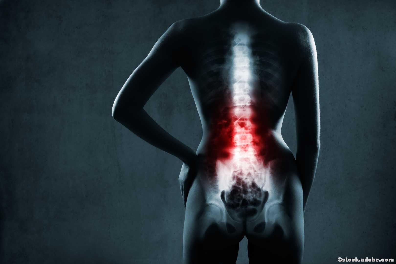 Lendenwirbelsäule Schmerzen Bandscheibenvorfall